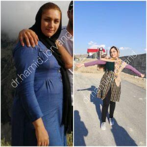 تصویر قبل و بعد مراجعین کاهش وزن
